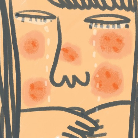Acne by Amy Ng